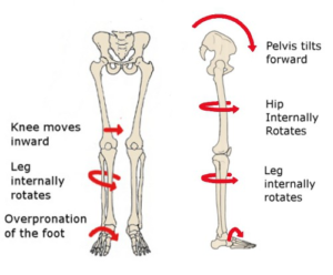 Foot Pain won't go away? Perhaps it's due to your hip? -
